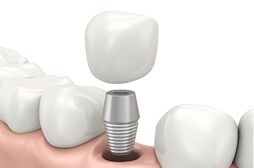 dental_implants_1 Advanced Dental Center of Florence, SC | Dr. Joseph Griffin