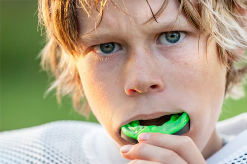 mouthguards_1 Advanced Dental Center of Florence, SC | Dr. Joseph Griffin